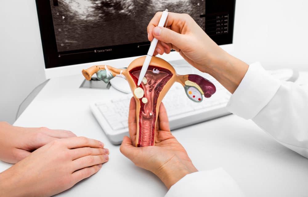 Prolapso vaginal: cómo prevenirlo y tratarlo