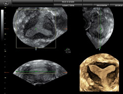 How is competence in the diagnosis of uterine malformations evaluated?