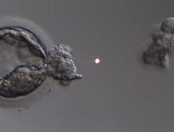 Accumuler des ovocytes élève à 60 % les possibilités  d'obtenir une grossesse