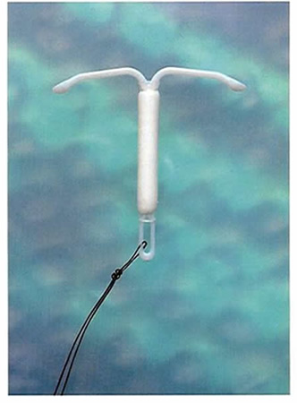 Dispositivos intrauterinos (DIU) | Dexeus Mujer