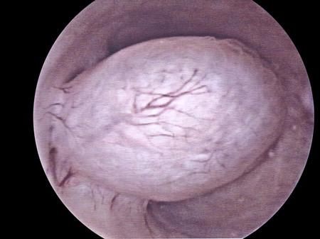 isteroscopia papilloma virus